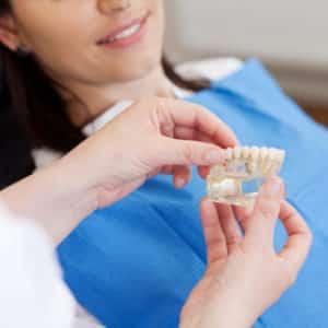 Dental-Implants-e1470452216507-300x300