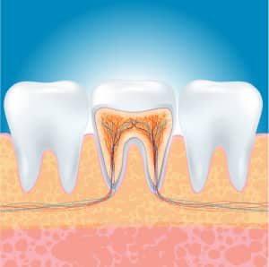3-common-questions-about-root-canal-treatment