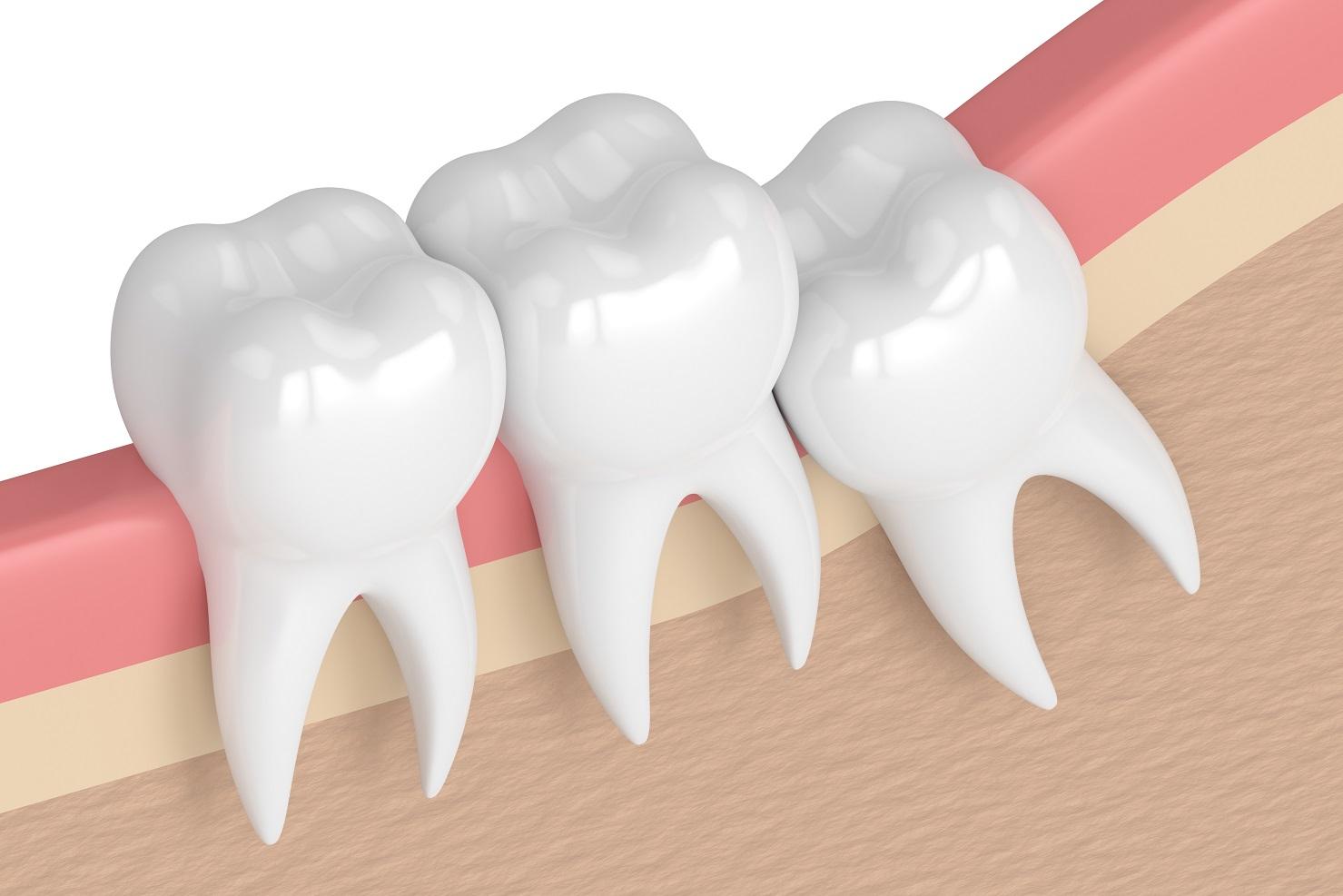Address Your Wisdom Teeth As Soon As They Grow In