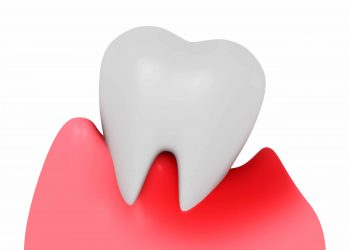 How Do We Treat Periodontal Disease?