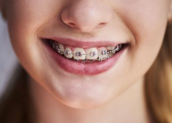 Worried About Whether Your Kids Need Braces?