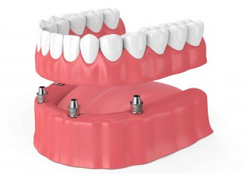The Benefits Of All-On-4® Dentures
