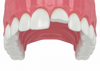 Chipped Teeth And Other Dental Emergencies