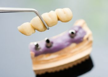 Let's Look At Implant Bridges