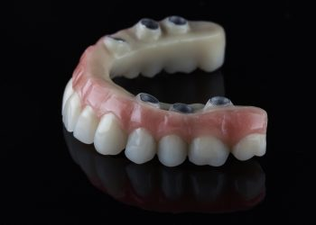Can We Secure Dentures With Dental Implants?