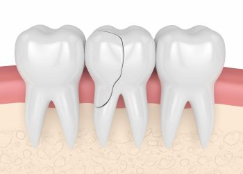 Does Your Cracked Tooth Need A Root Canal?
