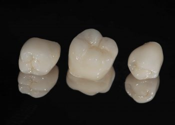 How Does A Crown Fix A Tooth?