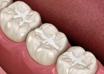 Placing Your Biocompatible Dental Filling