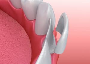 placing porcelain veneers