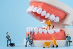 emergency repair with dental bonding
