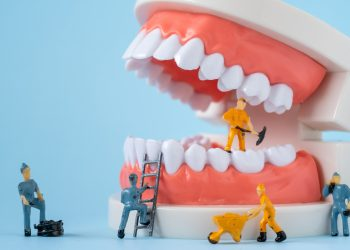 Emergency Repairs With Dental Bonding