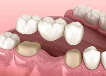 Avoid Worsening Oral Health With A Bridge