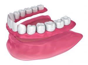 placing a full denture