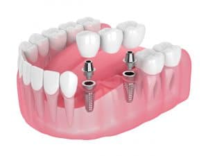 securing bridges with dental implants