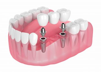 Securing Dental Bridges With Advanced Implants