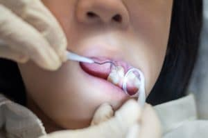 minimal restorations for children