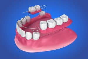 placing a partial denture