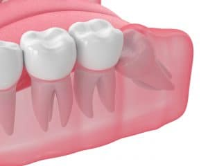 preventing wisdom tooth impaction with extraction