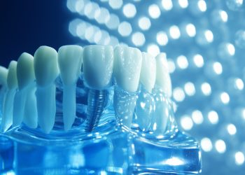 Our Team Offers Same-Day Dental Implants